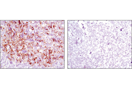 Image 26: p70 S6 Kinase Substrates Antibody Sampler Kit