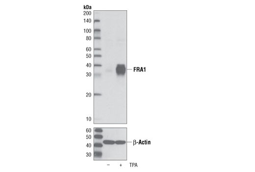 Monoclonal Antibody - FRA1 (D80B4) Rabbit mAb - Immunoprecipitation, Western Blotting, UniProt ID P15407, Entrez ID 8061 #5281 - Map Kinase Signaling
