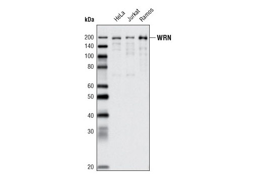 Western blot analysis of HeLa, Jurkat, and Ramos cell extracts using WRN (8H3) Mouse mAb.