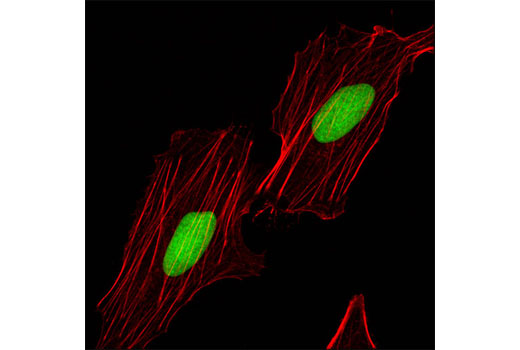 Confocal immunofluorescent analysis of HeLa cells using RecQL1 (Q1N3) Mouse mAb (green). Actin filaments were labeled with DY-554 phalloidin (red).