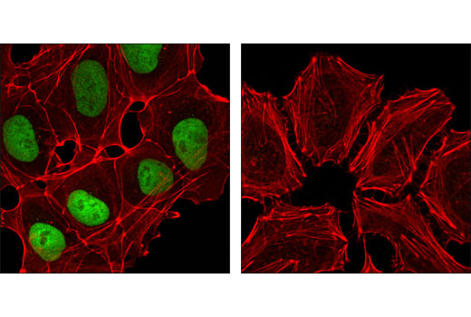Confocal immunofluorescent analysis of NTERA-2 cells (left) and HeLa cells (right) using Nanog (D73G4) XP<sup>®</sup> Rabbit mAb (green). Actin filaments have been labeled with DY-554 phalloidin (red).