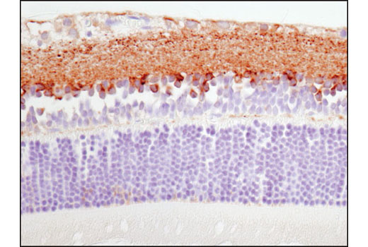 Immunohistochemical analysis of paraffin-embedded rat retina using Synapsin-1 (D12G5) XP<sup>®</sup> Rabbit mAb.