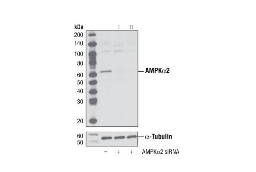 Western blot analysis of extracts from HeLa cells, transfected with 100 nM SignalSilence<sup>®</sup> Control siRNA (Unconjugated) #6568 (-), SignalSilence<sup>®</sup> AMPKα2 siRNA I (+) or SignalSilence<sup>®</sup> AMPKα2 siRNA II #6630 (+), using AMPKα2 Antibody #2757 (upper) or α-Tubulin (11H10) Rabbit mAb #2125 (lower). The AMPKα2 Antibody confirms silencing of AMPKα2 expression, while the α-Tubulin (11H10) Rabbit mAb is used as a loading control.