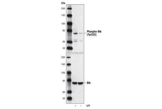 Western blot analysis of extracts from Ramos cells, untreated or treated with anti-human IgM (12 µg/ml for 10 minutes), using Phospho-Btk (Tyr223) Antibody (upper) or Btk (C82B8) Rabbit mAb #3533 (lower).