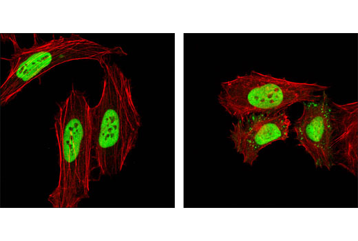 Confocal immunofluorescent analysis of HeLa cells, untreated (left) or UV-treated (right), using hnRNP K (R332) Antibody (green). Actin filaments have been labeled with DY-554 phalloidin (red).