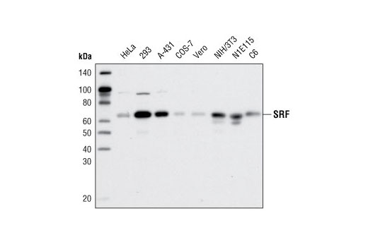 Western blot analysis of extracts from various cell lines using SRF (D71A9) XP<sup>®</sup> Rabbit mAb.