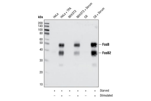 Western blot analysis of extracts from HeLa cells serum-starved overnight and TPA-stimulated for 4 hours, or NIH/3T3 cells and C6 cells serum-starved overnight and serum-stimulated for 4 hours, using FosB (5G4) Rabbit mAb.