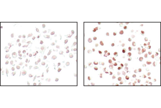 Immunohistochemical analysis of paraffin-embedded HeLa cells control (left) or PMA-treated (right), using FosB (5G4) Rabbit mAb.