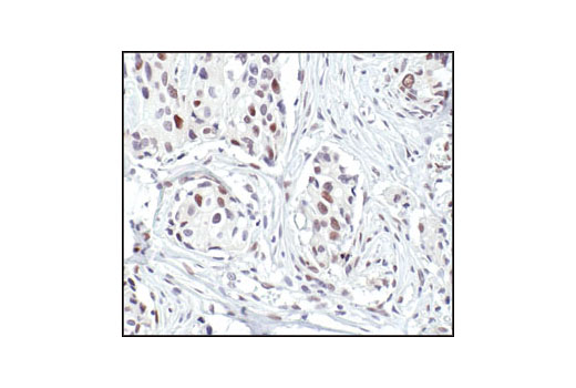 Immunohistochemical analysis of paraffin-embedded human breast carcinoma, using FosB (5G4) Rabbit mAb.