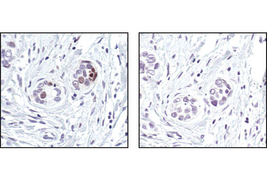 Immunohistochemical analysis of paraffin-embedded human breast carcinoma, using FosB (5G4) Rabbit mAb in the presence of control peptide (left) or FosB Blocking Peptide #1042 (right).