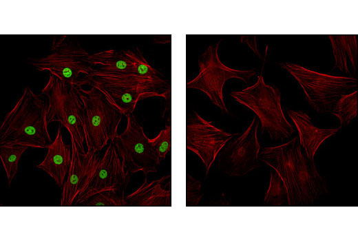 Confocal immunofluorescent analysis of NIH/3T3 cells labeled with Tri-Methyl-Histone H3 (Lys4) Antibody (green, left) compared to an isotype control (right). Actin filaments have been labeled with Alexa Fluor® 555 phalloidin (red).