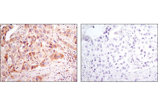 Immunohistochemical analysis of paraffin-embedded human breast caricnoma using Bax (D2E11) Rabbit mAb in the presence of control peptide (upper) or antigen-specific peptide (lower).