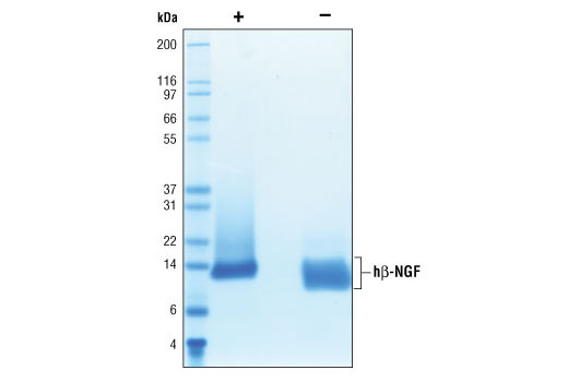Image 2: Human β-Nerve Growth Factor (hβ-NGF)