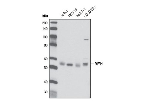 Western blot analysis of extracts from various cell types using MYH Antibody.