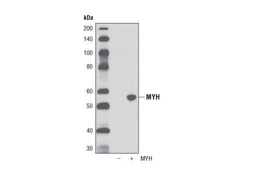 Western blot analysis of extracts from COS-7 cells, mock transfected (-) or MYH-transfected (+), using MYH Antibody.