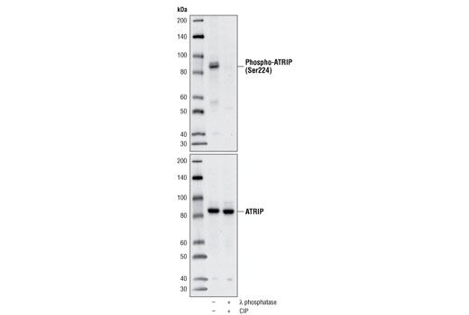 Polyclonal Antibody - Phospho-ATRIP (Ser224) Antibody - Western Blotting, UniProt ID Q8WXE1, Entrez ID 84126 #5161 - Cell Cycle / Checkpoint Control