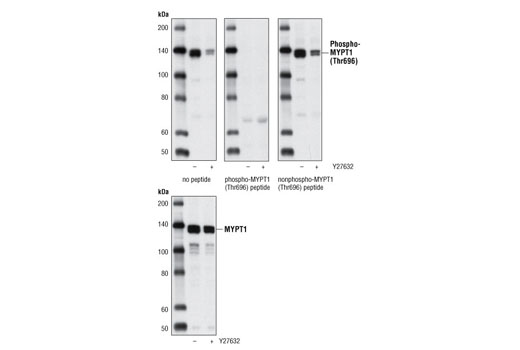 Western blot analysis of extracts from 293 cells, untreated or treated with the ROCK inhibitor Y27632 (2 minutes at 10 μM) using Phospho-MYPT1 (Thr696) Antibody or total MYPT1 Antibody #2634. Phospho-MYPT1 (Thr696) Antibody was pre-incubated as indicated with phospho-MYPT1 (Thr696) peptide or nonphospho-MYPT1 (Thr696) peptide.