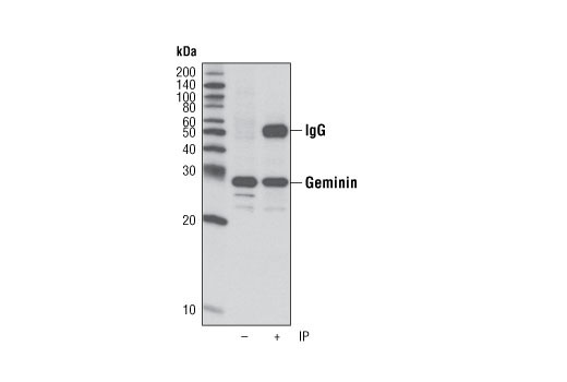 Immunoprecipitation of geminin from 293T cells using Geminin Antibody. Western blot was performed using the same antibody. Lane 1 contains 5% input.