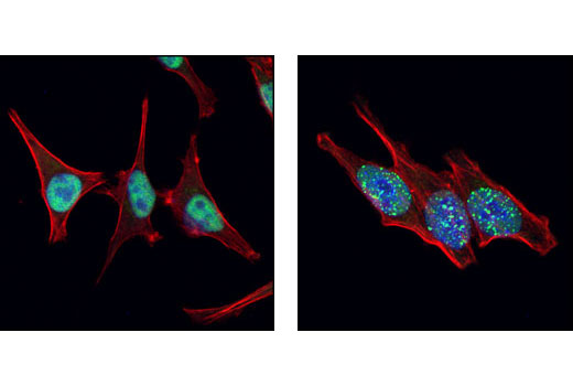 Polyclonal Antibody Immunofluorescence Immunocytochemistry Dna-Dependent Dna Replication