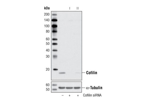 Western blot analysis of extracts from HeLa cells, transfected with 100 nM SignalSilence<sup>®</sup> Control siRNA (Unconjugated) #6568 (-), SignalSilence<sup>® </sup>Cofilin siRNA I #6267 (+) or SignalSilence<sup>®</sup> Cofilin siRNA II (+), using Cofilin (D59) Antibody #3318 (upper) or α-Tubulin (11H10) Rabbit mAb #2125 (lower). The Cofilin (D59) Antibody confirms silencing of cofilin expression, while the α-Tubulin (11H10) Rabbit mAb is used as a loading control.