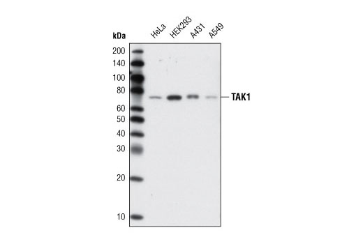 Monoclonal Antibody - TAK1 (D94D7) Rabbit mAb - Immunoprecipitation, Western Blotting, UniProt ID O43318, Entrez ID 6885 #5206, Map Kinase Signaling