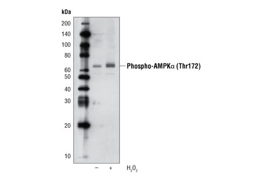 Western blot analysis of extracts from C2C12 cells, untreated (-) or hydrogen peroxide-treated (+), using Phospho-AMPKα (Thr172) (40H9) Rabbit mAb (Biotinylated).