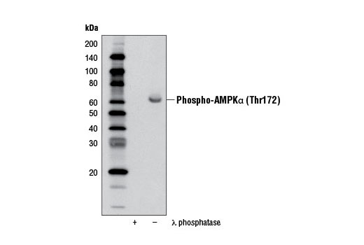 Western blot analysis of extracts from oligomycin-treated (0.5 µM) 293 cells either untreated (-) or λ phosphatase (+), using Phospho-AMPKα (Thr172) (40H9) Rabbit mAb (Biotinylated).