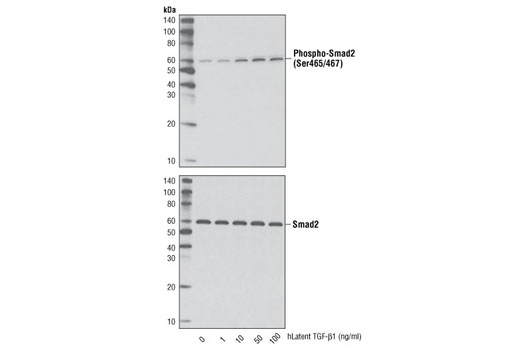 Western blot analysis of extracts from HeLa cells, untreated or treated with the hLatent TGF-β1 for 25 minutes, using Phospho-Smad2 (Ser465/467) (138D4) Rabbit mAb #3108 (upper) and Smad2 (86F7) Rabbit mAb #3122 (lower).