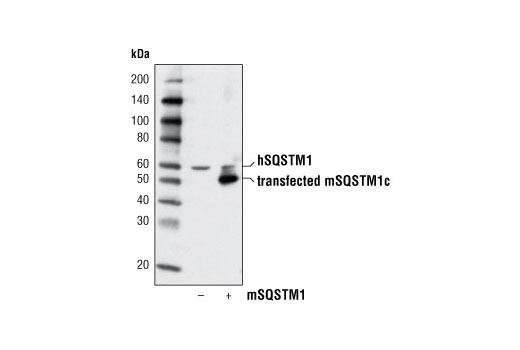 Western blot analysis of extracts from 293T cells, mock transfected (-) or transfected with mouse SQSTM1 isoform c (mSQSTM1c) construct (+), using SQSTM1/p62 Antibody.