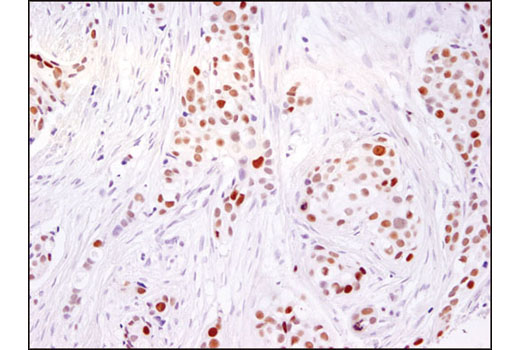 Immunohistochemical analysis of paraffin-embedded human breast carcinoma using Ezh2 (D2C9) XP<sup>®</sup> Rabbit mAb.