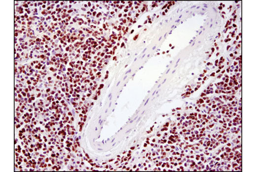 Immunohistochemical analysis of paraffin-embedded human lymphoma using Ezh2 (D2C9) XP<sup>®</sup> Rabbit mAb.