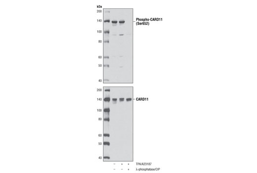 Western blot analysis of extracts from Jurkat cells, untreated or treated with TPA #9905 (40 nM) and calcium ionophore A23187 (2 μM) for 15 minutes, and λ-phosphatase plus calf intestinal phosphatase (CIP) as indicated, using Phospho-CARD11 (Ser652) Antibody (upper) and CARD11 (1D12) Rabbit mAb #4435 (lower).