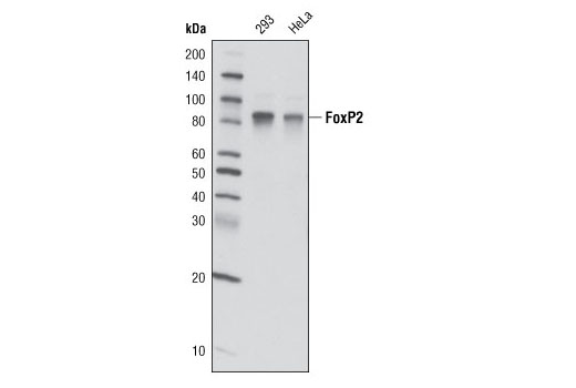 Western blot analysis of extracts from 293 and HeLa cells using FoxP2 (D55H9) Rabbit mAb.