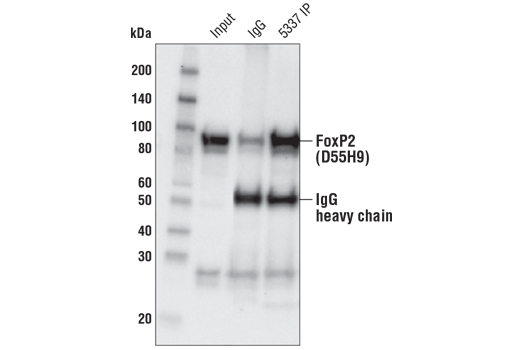 Immunoprecipitation Image 1: FoxP2 (D55H9) Rabbit mAb