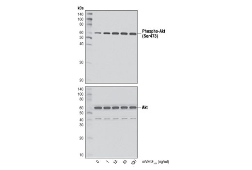 Western blot analysis of extracts from HUVEC untreated or treated with mVEGF<sub>164</sub> for 15 minutes, using Phospho-Akt (Ser473) (D9E) XP<sup>®</sup> Rabbit mAb #4060 (upper) and Akt1 (C73H10) Rabbit mAb #2938 (lower).