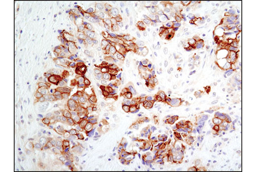 Immunohistochemical analysis of paraffin-embedded human colon carcinoma using NDRG1 Antibody.