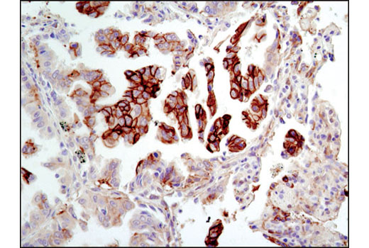 Immunohistochemical analysis of paraffin-embedded human lung carcinoma using NDRG1 Antibody.