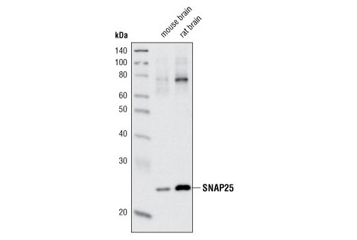 Western blot analysis of extracts from mouse and rat brain using SNAP25 (D9A12) Rabbit mAb.