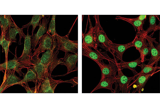 Confocal immunofluorescent analysis of NIH/3T3 cells, serum-starved (left) or treated with hTGF-β3 #8425 (right), using Smad2 (D43B4) XP<sup>®</sup> Rabbit mAb (green). Actin filaments have been labeled with DY-554 phalloidin (red).
