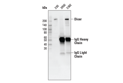 Image 5: RNAi Machinery Antibody Sampler Kit