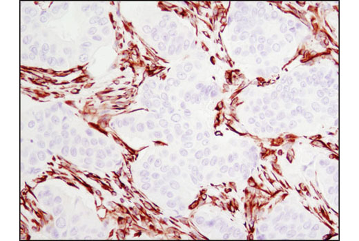 Immunohistochemical analysis of paraffin-embedded human breast carcinoma using Vimentin (D21H3) XP<sup>®</sup> Rabbit mAb.