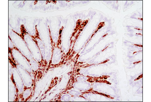 Immunohistochemical analysis of paraffin-embedded mouse colon using Vimentin (D21H3) XP<sup>®</sup> Rabbit mAb.