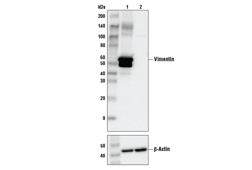 Western blot analysis of HeLa cell extracts, untreated (-) or Vimentin knock-out (+), using Vimentin (D21H3) XP® Rabbit mAb, #5741 (upper) or β-actin (13E5) Rabbit mAb #4970 (lower).