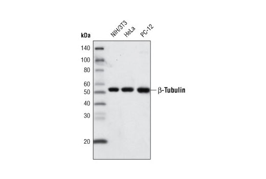 Monoclonal Antibody - β-Tubulin (9F3) Rabbit mAb (Biotinylated), UniProt ID P07437, Entrez ID 203068 #6181 - Primary Antibody Conjugates