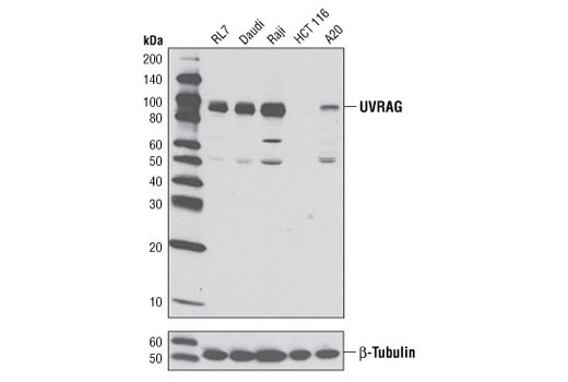 Western blot analysis of extracts from various cell lines using UVRAG Antibody (upper) or β-Tubulin (9F3) Rabbit mAb #2128 (lower). HCT 116 cells have been reported to contain a monoallelic frameshift mutation resulting in significantly reduced levels of endogenous UVRAG expression (Ref. 11).
