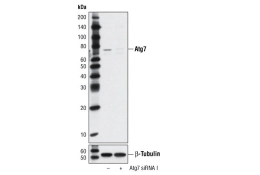 Western blot analysis of extracts from HeLa cells, transfected with 100 nM SignalSilence<sup>®</sup> Control siRNA (Unconjugated) #6568 (-) or SignalSilence<sup>®</sup> Atg7 siRNA I (+), using Atg7 Antibody #2631 (upper) or β-Tubulin (9F3) Rabbit mAb #2128 (lower). The Atg7 Antibody confirms silencing of Atg7 expression, while the β-Tubulin (9F3) Rabbit mAb is used as a loading control.