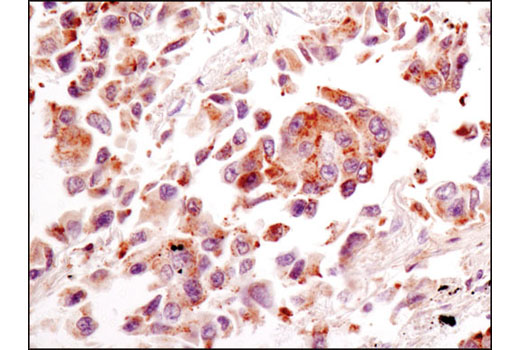 Immunohistochemical analysis of paraffin-embedded human lung carcinoma using RagC (D31G9) XP<sup>®</sup> Rabbit mAb.
