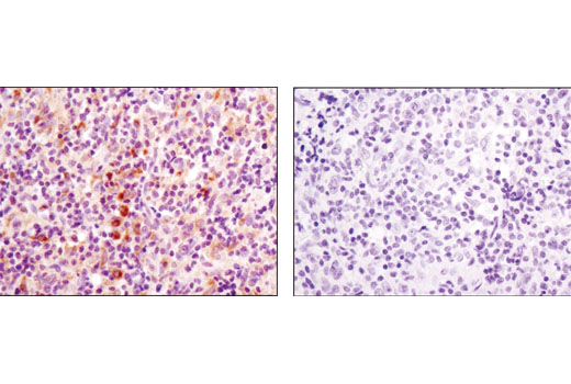 Immunohistochemical analysis of paraffin-embedded human lymphoma using RagC (D31G9) XP<sup>®</sup> Rabbit mAb in the presence of control peptide (left) or antigen-specific peptide (right).