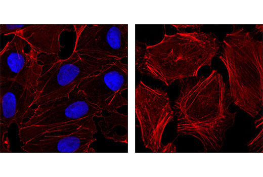 Confocal immunofluorescent analysis of NTERA-2 cells (left) and HeLa cells (right) using Nanog (D73G4) XP<sup>®</sup> Rabbit mAb (Alexa Fluor<sup>®</sup> 647 Conjugate) (blue pseudocolor). Actin filaments were labeled with DY-554 phalloidin (red).