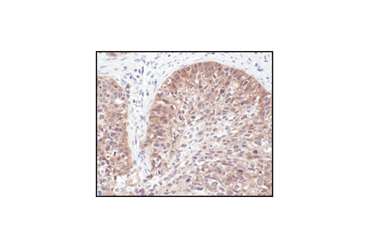 Immunohistochemical analysis of paraffin-embedded human lung carcinoma using NQO1 (A180) Mouse mAb.